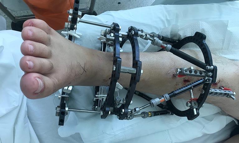 Man's leg in hospital