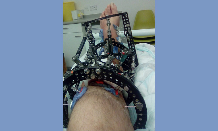 Darrel's leg with the Taylor Spacial frame, which remained on his leg for many months