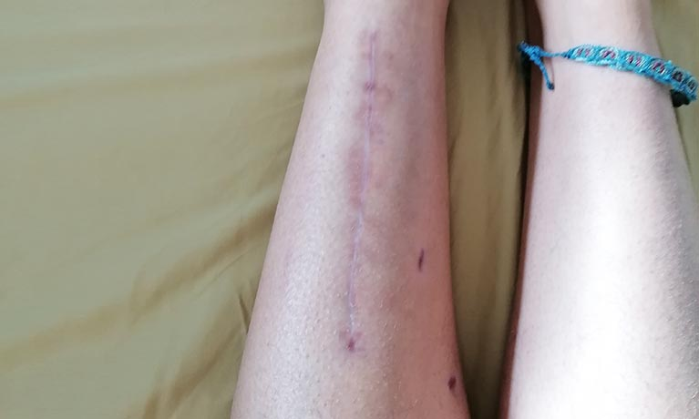 Leg after surgery showing scar